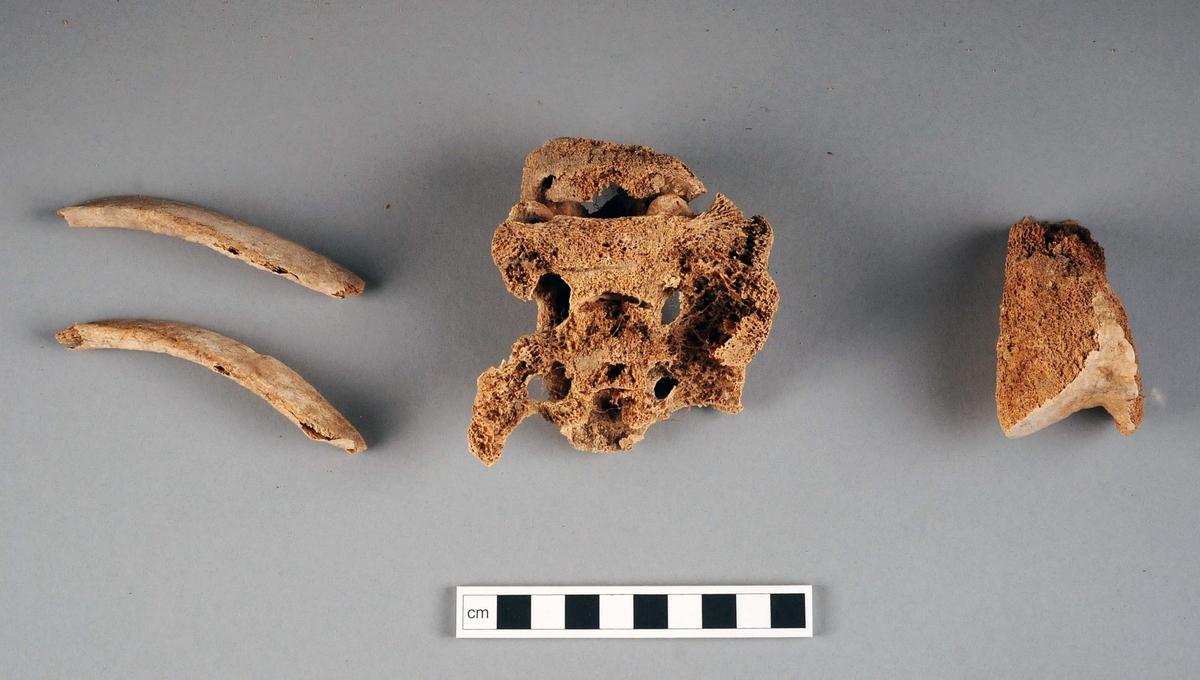 Delar av ett kranium med underkäke. Delar av revben, korsben, sista ländkotan, en del av ett lårben (knäleden) samt mindre benfragment. Mycket fragmentariska och sköra. På kraniet finns huggskador, men det är oklart om det är skador som uppkommit i samband med den arkeologiska undersökningen eller om skadorna kan kopplas till strid.