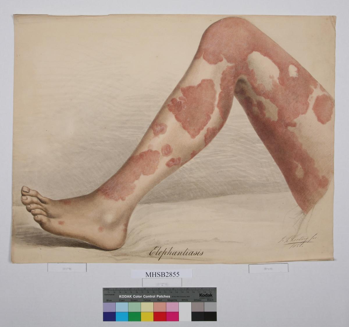 Venstre bein, pasient med Elephanitiasis